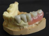 Fragment protezy